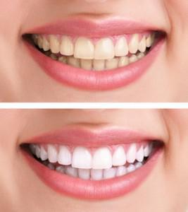 Sbiancamento dei denti a Padova e Treviso