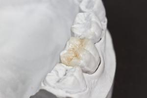 ricostruzione dentale padova e treviso