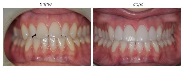 trattamento faccette dentali - Padova e Treviso