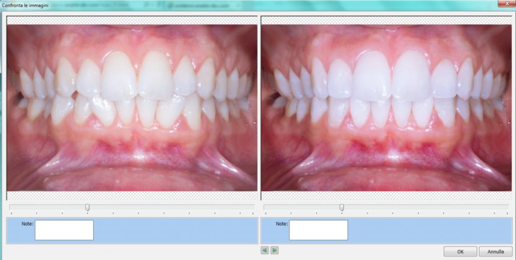 Fotosimulazione Smiletronic