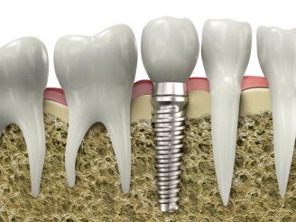 implantologia tradizionale
