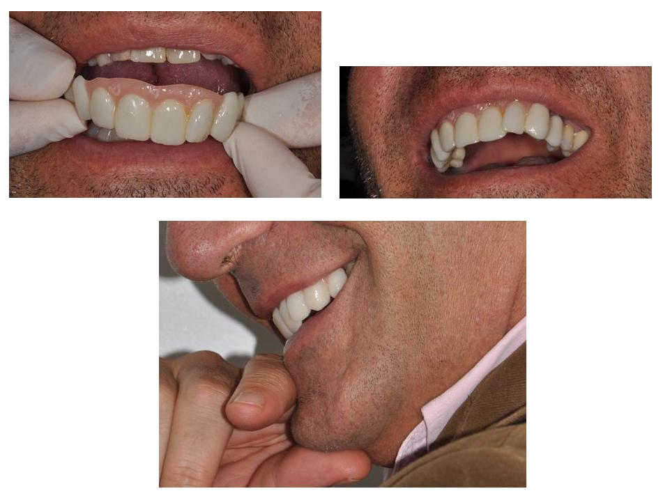 trucco dentale padova treviso