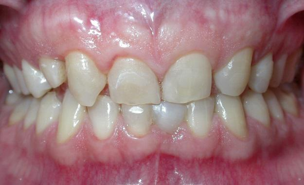 corone in zirconia ceramica