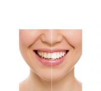 ricostruzioni dentali-estetiche