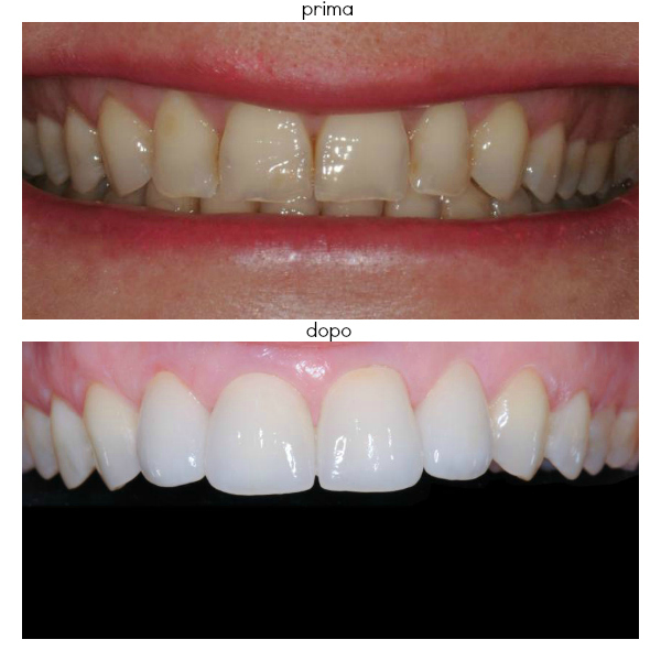 Studio Dentistico a Padova e Treviso
