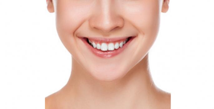 bocca sana e sorriso perfetto