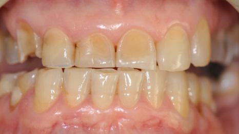 Cos'è l'erosione dentale