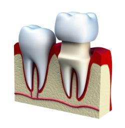 Cosa sono le corone dentali