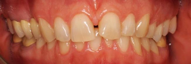 corone-dentali-padova
