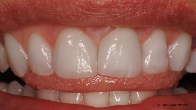 corone-dentali-treviso