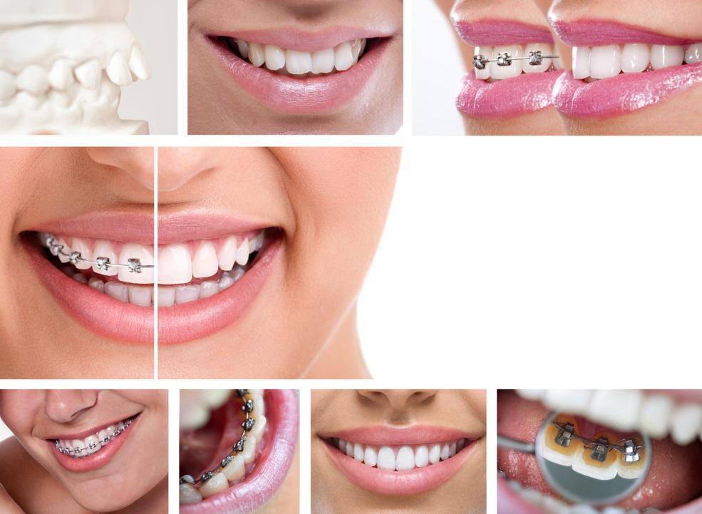 trattamenti di ortodonzia Padova Treviso