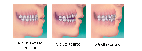 trattamento ortodontico Padova Treviso