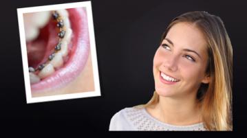 Apparecchio ortodontico fisso linguale