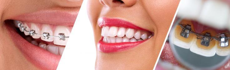 Apparecchio ortodontico fisso linguale Treviso