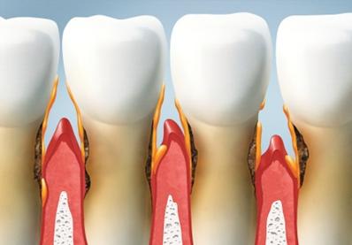 Malattia parodontale