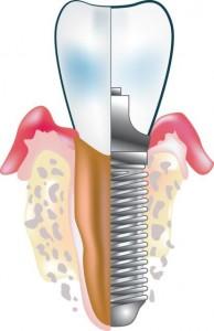 cos-e-implantologia estetica