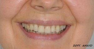 Ringiovanimento del sorriso prima e dopo treviso
